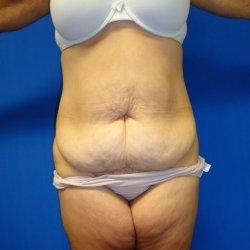 Manhattan abdominoplasty before 12